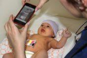 Jaundice in newborn app